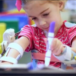 Researchers Use 3D Printer to Create Magic Arms for Little Girl